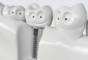 Cartoon of 3 teeth smiling, middle tooth is a dental implant